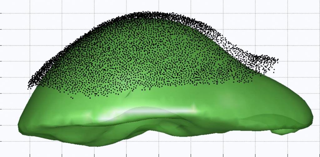 Imagen: Desparidad entre la forma del hígado en una tomografía computarizada (verde) y el rastreo intraoperatorio (Fotografía cortesía de la Universidad de Vanderbilt).