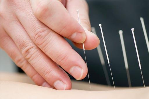 Imagen: Una nueva investigación muestra que la acupuntura puede reducir el dolor de la menstruación (Fotografía cortesía de Getty Images).
