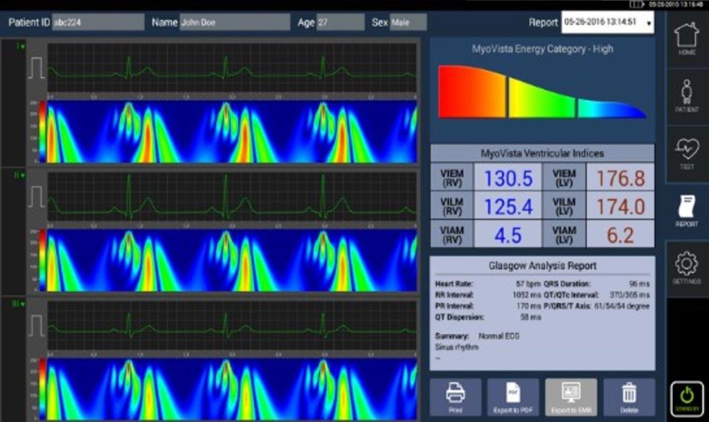 Imagen: El MyoVista proporciona una visualización detallada de la distribución de energía durante el ciclo cardíaco (Fotografía cortesía de HeartSciences).