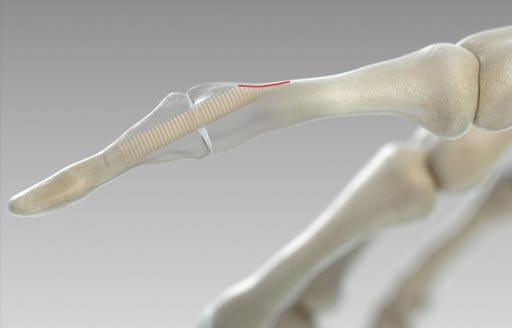 Imagen: La investigación sugiere que los tornillos ortopédicos hechos de hueso humano pronto podrían reemplazar los de metal (Fotografía cortesía de Surgebright).