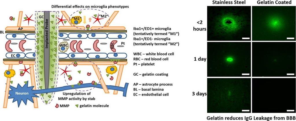 Imagen: Un nuevo estudio ha mostrado que la gelatina ayuda a cerrar más rápidamente las heridas en la barrera hematoencefálica (Fotografía cortesía de la Universidad de Lund)