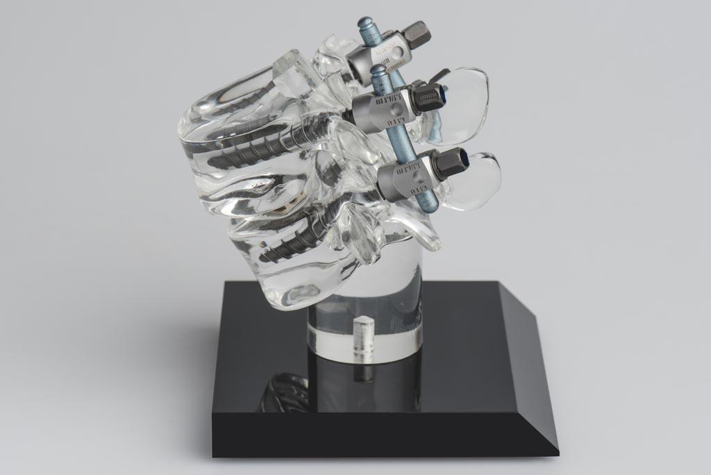 Imagen: Modelo de columna vertebral con cuatro tornillos pediculares para la estabilización de la columna vertebral (Fotografía cortesía de Pascal Gugler).