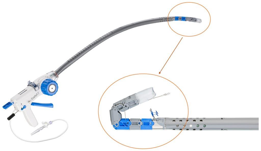 Imagen: El dispositivo EsophyX Z+ con una vista cercana del molde de tejido (Fotografía cortesía de EndoGastric Solutions).