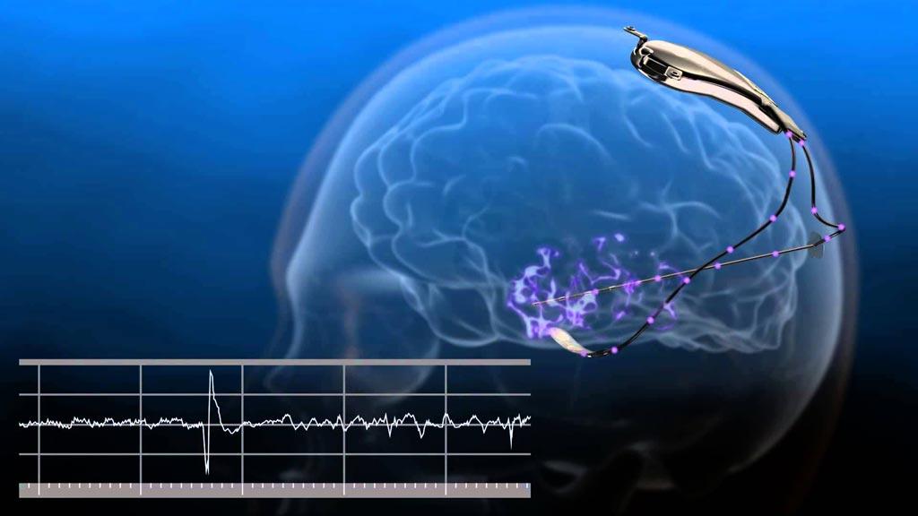 Imagen: Se puede usar el sistema NeuroPace RNS para predecir un ataque de epilepsia (Fotografía cortesía de NeuroPace).