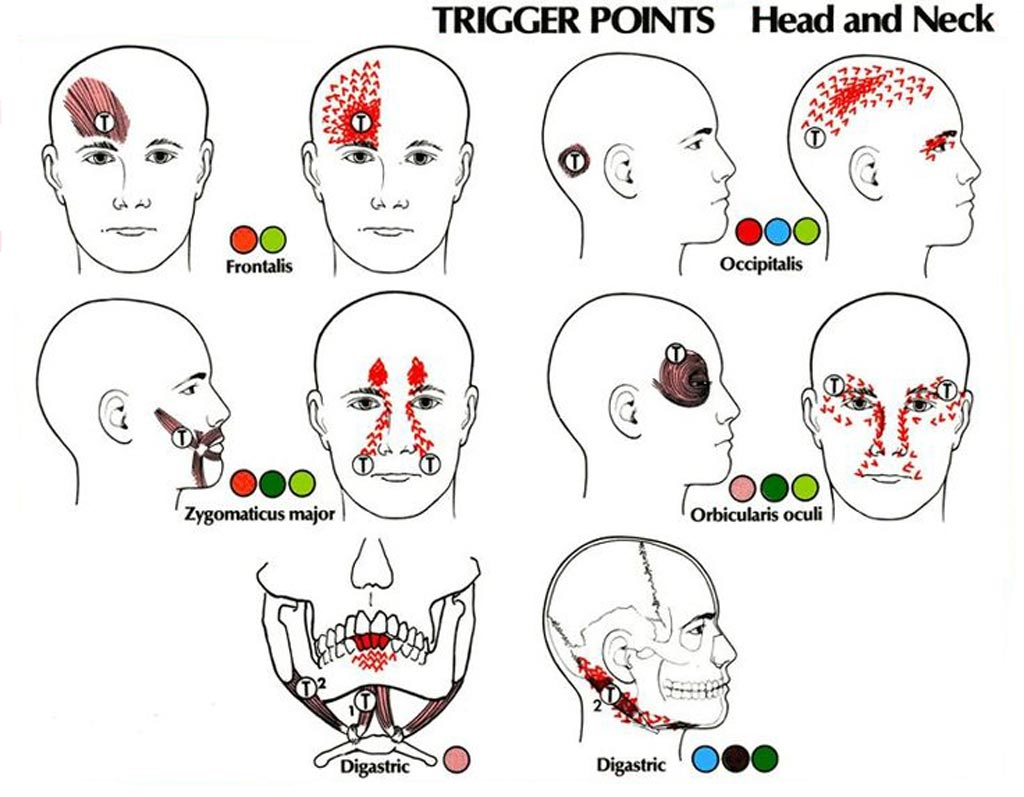 Imagen: Los principales puntos gatillo de la migraña (Fotografía cortesía de Pinterest).