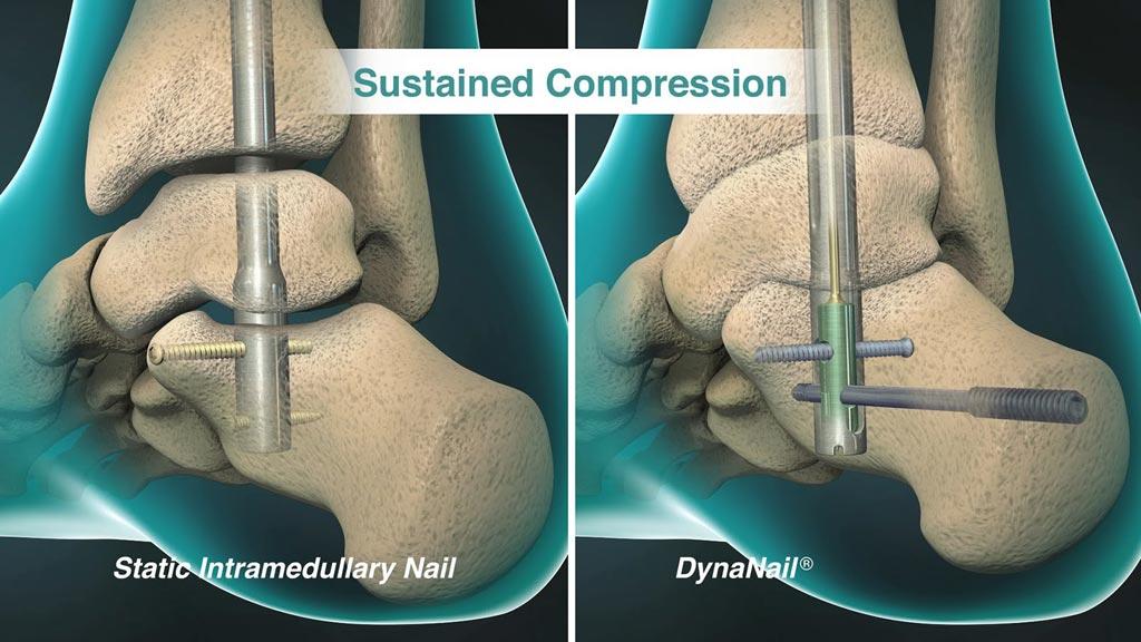Imagen: El elemento de compresión interno DynaNail XL se adapta automáticamente a los cambios en la articulación (Fotografía cortesía de MedShape).