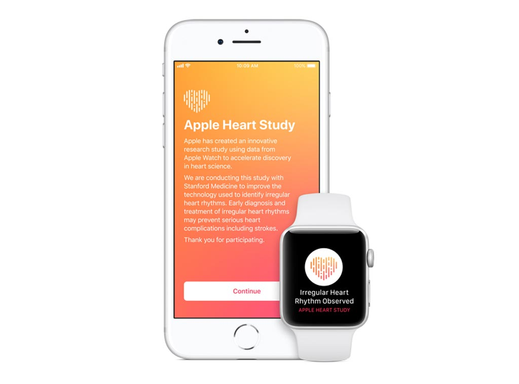 Imagen: Apple y Stanford han lanzado conjuntamente un estudio para identificar la fibrilación auricular (Fotografía cortesía de Apple).