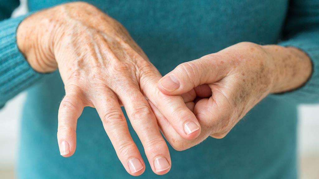 Imagen: Un nuevo estudio afirma que las mujeres posmenopáusicas sufren más de artritis (Fotografía cortesía de Getty Images).