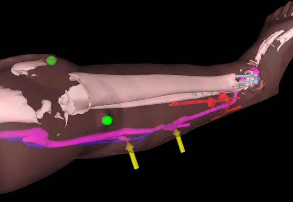 Imagen: Los auriculares HoloLens ayudaron a los cirujanos a realizar una cirugía reconstructiva de miembros inferiores en pacientes (Fotografía cortesía de la Universidad Imperial de Londres).