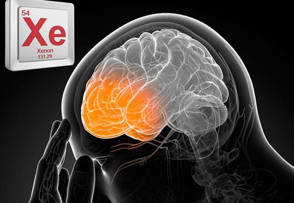 Imagen: Un nuevo estudio sugiere que el gas xenón puede proteger al cerebro de la lesión traumática por explosión (Fotografía cortesía de ICL).