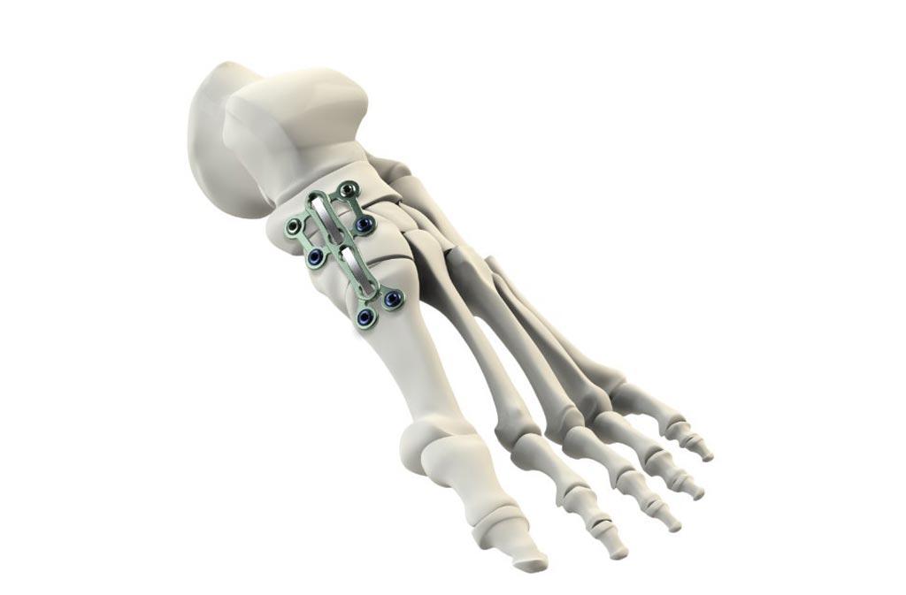 Imagen: El sistema de fijación de la placa y del clip de nitinol diseñado para estabilizar el tobillo (Fotografía cortesía de CrossRoads).
