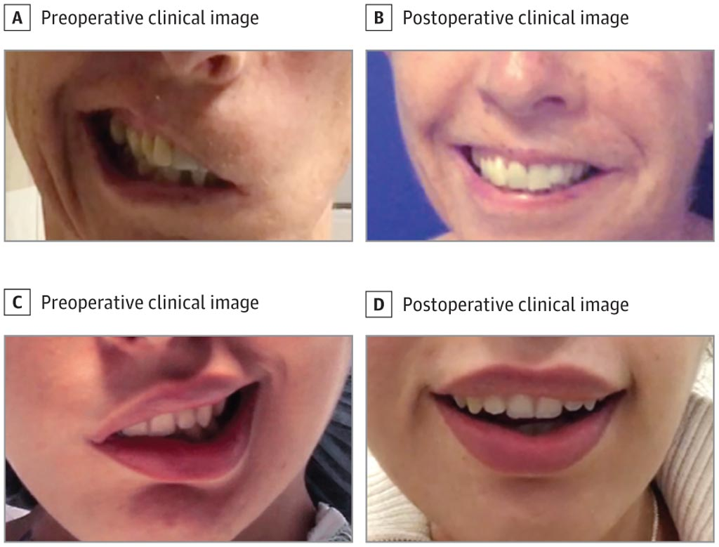 Imagen: Un trasplante muscular multivectorial puede restaurar la sonrisa (Fotografía cortesía de Kofi Boahene/JHU-SOM).