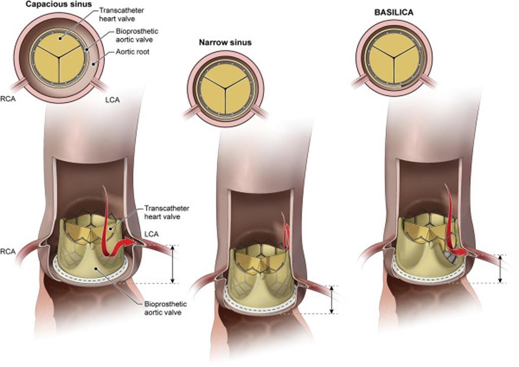 Imagen: La laceración de la válvula aórtica reduce el riesgo de obstrucción después del TAVR (Fotografía cortesía del NHBLI).