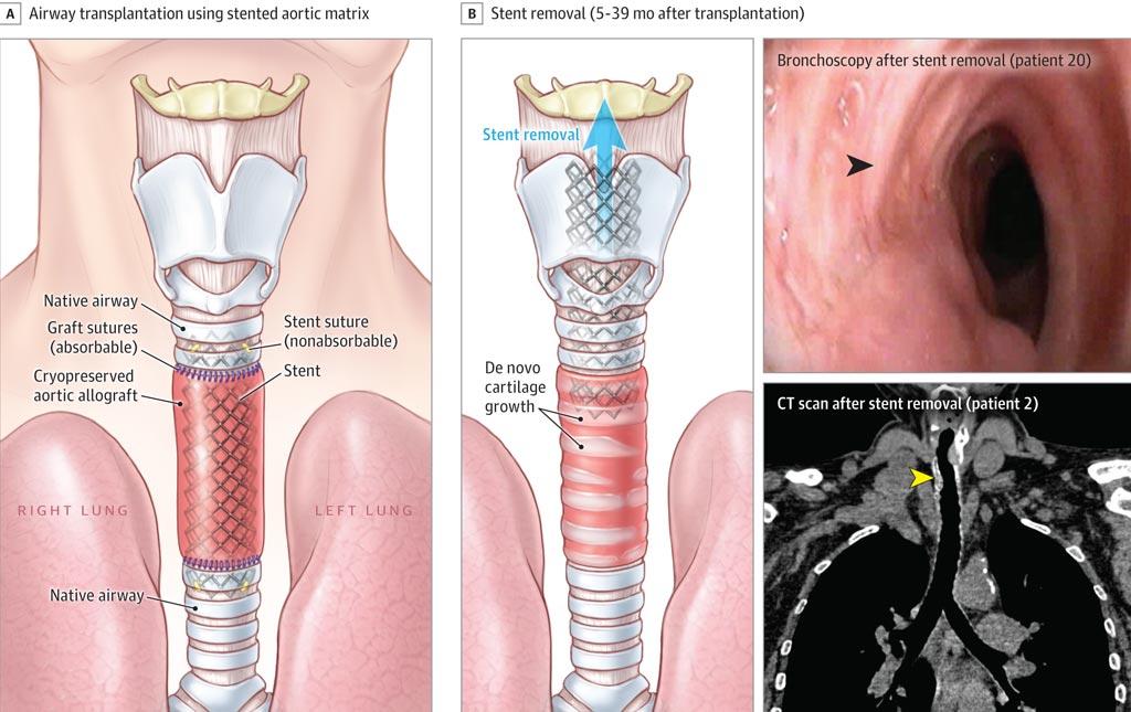 Imagen: Las aortas de donantes fallecidos se pueden usar para reconstruir la tráquea (Fotografía cortesía de JAMA).