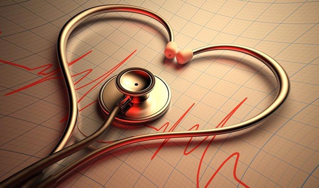 Imagen: Un nuevo estudio muestra que la fibrilación auricular en personas con enfermedad de la arteria carótida puede elevar el riesgo de demencia (Fotografía cortesía de Shutterstock).