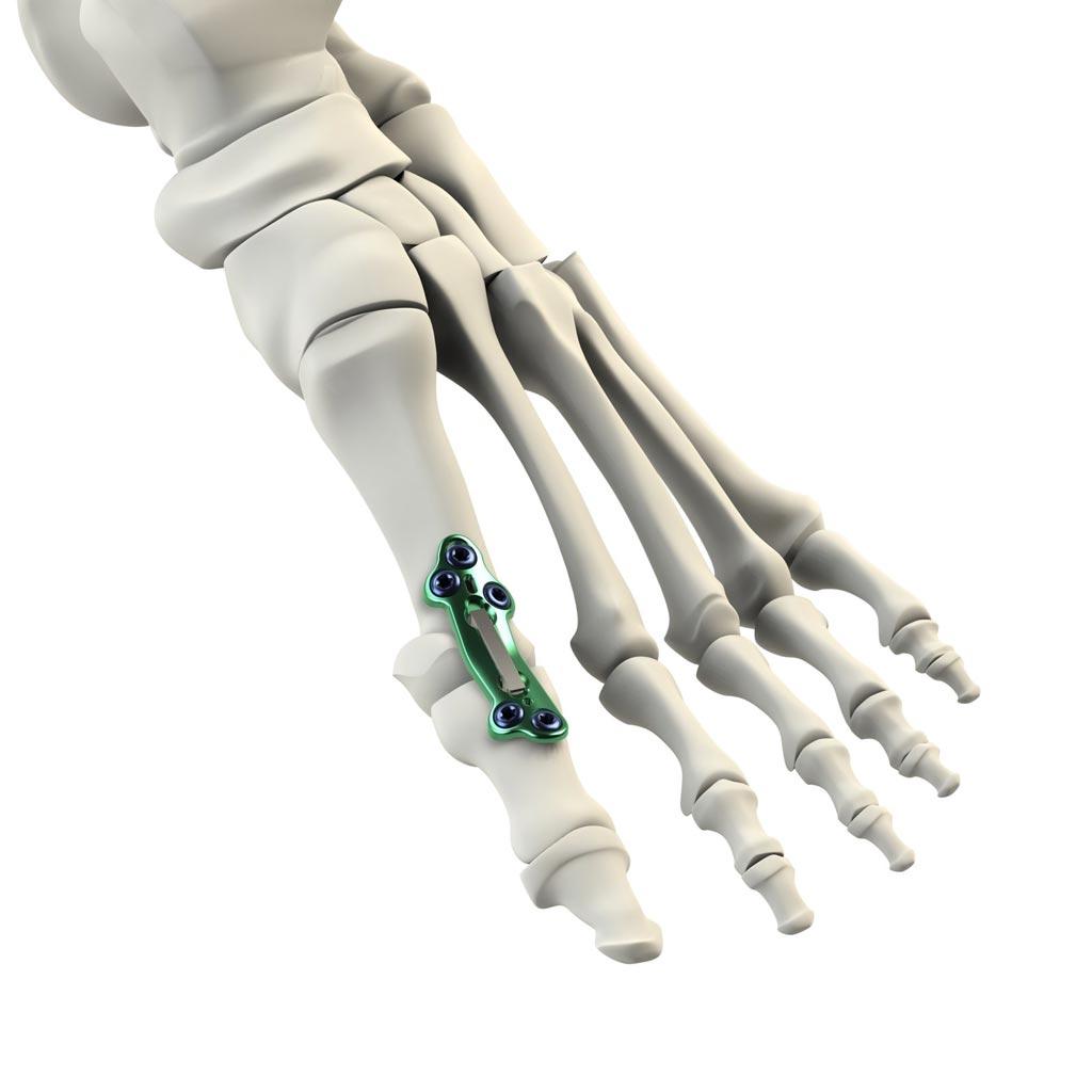 Imagen: El sistema de implante DynaForce Active Stabilization MPJ (Fotografía cortesía de CrossRoads Extremity Systems).