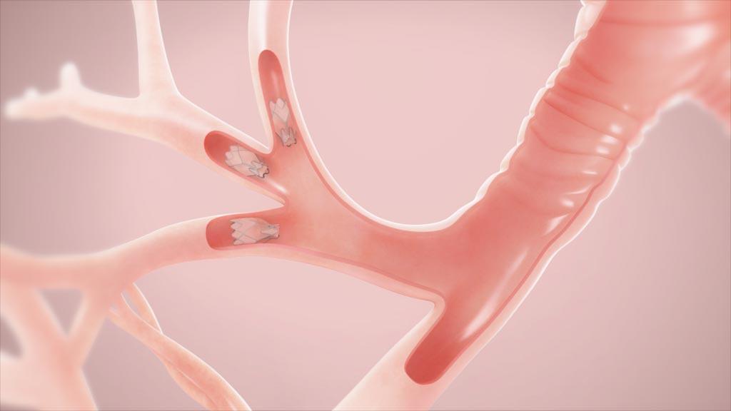 Imagen: La válvula endobronquial, Zephyr (Fotografía cortesía de PulmonX).