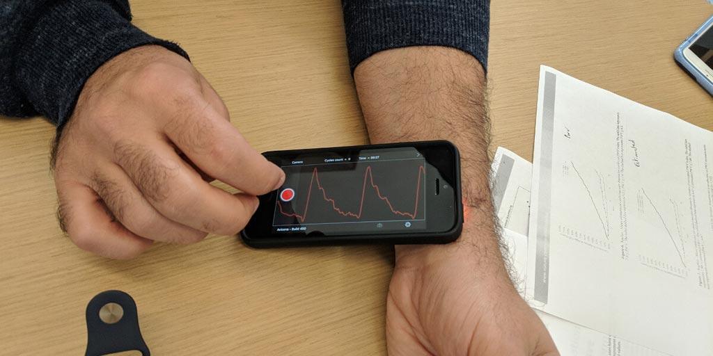 Imagen: La aplicación Vivio mide el pulso en un iPhone (Fotografía cortesía de Niema Pahlevan/USC).