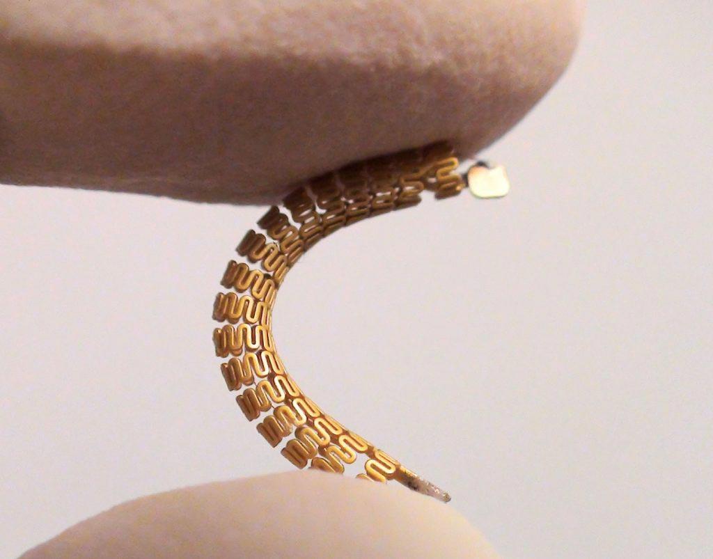 Imagen: El stent inteligente con una antena adjunta en la parte superior (Fotografía cortesía de la UBC).