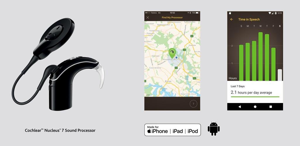 Imagen: Los receptores de implantes cocleares ahora pueden controlar su audición con la aplicación Nucleus Smart (Fotografía cortesía de Cochlear).