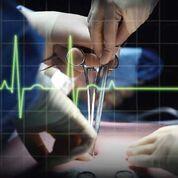 Imagen: Un estudio nuevo afirma que los eventos vasculares son la principal causa de muerte después de una cirugía no cardíaca (Fotografía cortesía de Shutterstock).