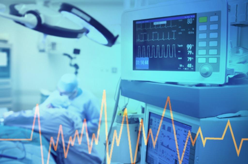 Imagen: La investigación sugiere que las organizaciones de dispositivos médicos deben alinearse con los paisajes comerciales de los países seleccionados para lograr el éxito comercial (Fotografía cortesía de iBS).