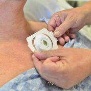 Imagen: El sensor adhesivo indica si es necesario voltear al paciente (Fotografía cortesía de Leaf Healthcare).