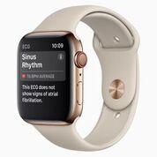 Imagen: El nuevo Apple Watch puede tomar un ECG (Fotografía cortesía de Apple).