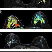 Imagen: La DCE-MRI cada seis meses ayuda a detectar el cáncer de mama invasivo con anterioridad (Fotografía cortesía de Fred Pineda / UCM).