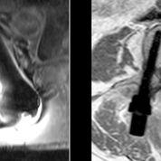 Imagen: Una resonancia magnética de tornillos pediculares de titanio (I) y de tornillos pediculares CarboClear (D) (Fotografía cortesía de CarboFix).