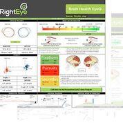 Imagen: El seguimiento de los movimientos oculares puede ayudar a detectar problemas neurológicos (Fotografía cortesía de RightEye).