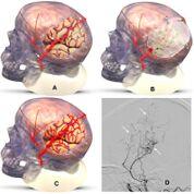 Imagen: La cirugía EDAS redirecciona las arterias del cuero cabelludo para proporcionar nuevas vías para la circulación cerebral (flechas blancas) (Fotografía cortesía de Cedars-Sinaí).