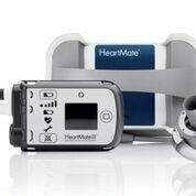 Imagen: El sistema MagLev HeartMate 3 LVAD (Fotografía cortesía de Abbott).