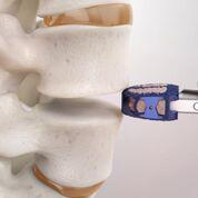 Imagen: El sistema ALIF de titanio ENZA-A (Fotografía cortesía de Camber Spine Technologies).