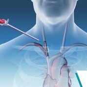 Imagen: El Sistema Bluegrass Vascular Surfacer (Fotografía cortesía de Bluegrass Vascular).