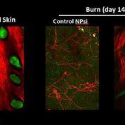 Imagen: La inhibición de las enzimas de escisión FL2, ayuda a que la reparación de las heridas se haga de manera mejor y más rápida (Fotografía cortesía de la Facultad de Medicina Albert Einstein).