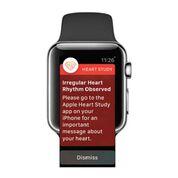 Imagen: El Apple Watch pronto podrá detectar la FA y otras arritmias (Fotografía cortesía de la Universidad de Stanford).