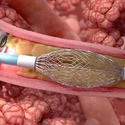 Imagen: el tratamiento de electrocirugía de pulmón puede ayudar a tratar la bronquitis crónica (Fotografía cortesía de Gala Therapeutics).