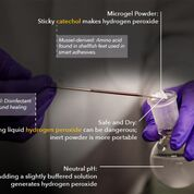 Imagen: Un estudio nuevo afirma que un microgel en polvo puede desinfectar las heridas (Fotografía cortesía de la MTU).