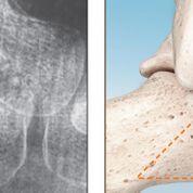 Imagen: El implante subtalar PitStop está hecho de PEEK, lo que lo hace más suave que los implantes de metal (Fotografía cortesía de In2Bones Global).