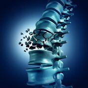 Imagen: Un estudio nuevo afirma que el aumento vertebral no alivia el dolor causado por las fracturas (Fotografía cortesía de iStock).