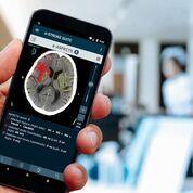 Imagen: Las imágenes producidas por e-ASPECTS tal como se ven en un dispositivo móvil (Fotografía cortesía de Brainomix).