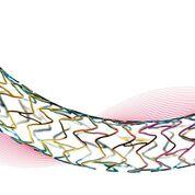 Imagen: Un stent con forma de doble hélice proporciona mayor flexibilidad (Fotografía cortesía de BIOTRONIK).