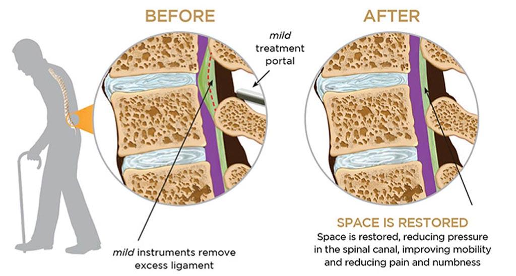 Imagen: En el procedimiento de la columna vertebral, la eliminación del exceso de tejido en la columna lumbar alivia la LSS (Fotografía cortesía de Vertos Medical).
