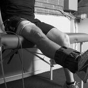 Imagen: Un estudio nuevo afirma que restringir el suministro de sangre después de la cirugía del LCA conserva el hueso (Fotografía cortesía de ORS).