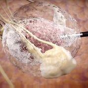 """Imagen: Un tumor """"bola de hielo"""" creado durante el tratamiento con crioablación (Fotografía cortesía de IceCure Medical)."""