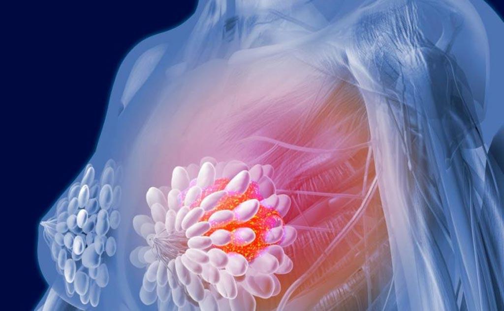 Imagen: Se prevé que el mercado mundial de diagnóstico de cáncer de mama supere los dos mil millones de dólares en ingresos para fines de 2022 (Fotografía cortesía de Shutterstock).