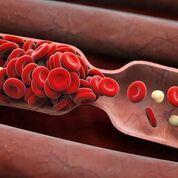 Imagen: Un estudio nuevo afirma que los anticoagulantes pueden reducir los posibles peligros cardiovasculares en pacientes con insuficiencia cardíaca (Fotografía cortesía de Fotolia).