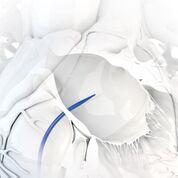 Imagen: El Sistema de Dilatación Transseptal ExpanSure (Fotografía cortesía de Baylis Medical).