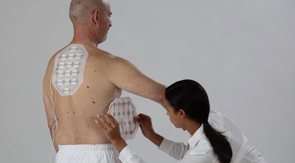 Imagen: Hileras de transductores en el torso emiten campos eléctricos para tratar el mesotelioma (Fotografía cortesía de Novocure).